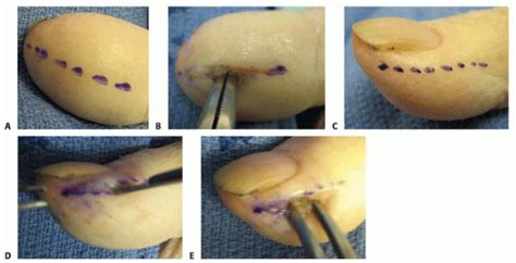 Surgical Treatment of Acute and Chronic Paronychia and