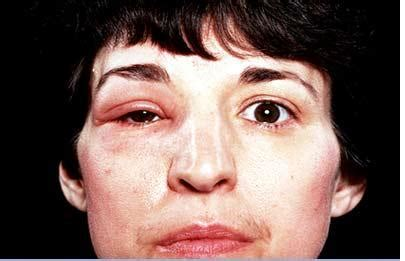 angioneurotic edema | Medical Pictures Info - Health