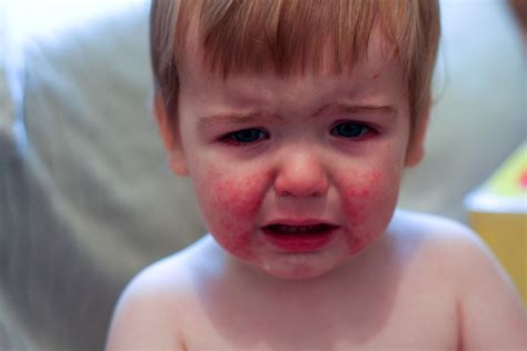 Parvovirus Infection Symptoms, Causes, Diagnosis and